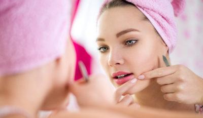 6 Quick-Fire Home Remedies To Get Rid of Acne and Pimples Overnight